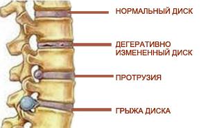 Простые упражнения остеохондроза поясничного отдела позвоночника