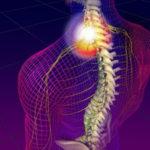 Синдром шейной мигрени