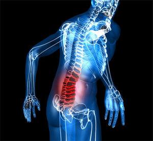 Ущемление нерва в пояснице - насколько опасно и как лечить?