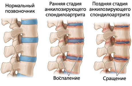 Причины развития болезни Бехтерева
