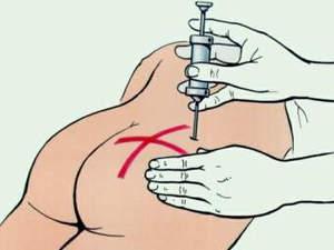 Область введения внутримышечных инъекций