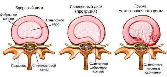 Лечение межпозвоночная грыжа шейный отдел позвоночника