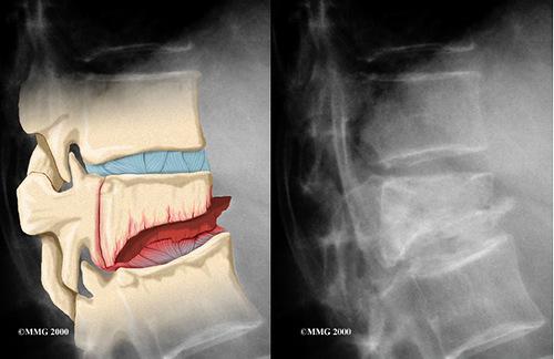 Симптомы компресионного перелома