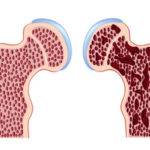 Лечение остеопороза тазобедренного сустава