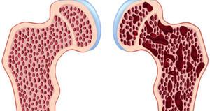 Остеопороз тазобедренного сустава