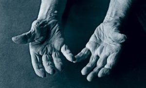 Артрит суставов пальцев на руках