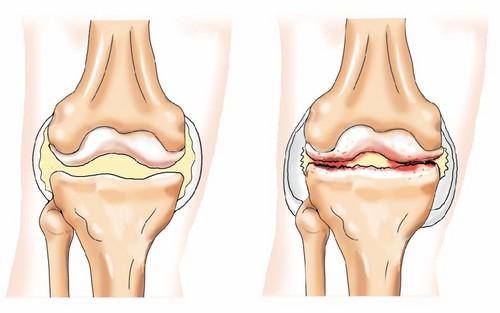 Артрозо артрит коленного сустава