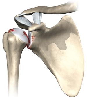 Последствия остеоартрита