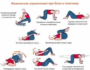 комплекс упражнений при поясничных болях
