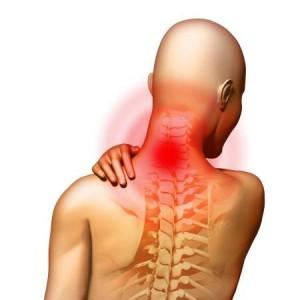 описание синдрома позвоночной артерии