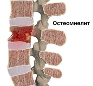 Наглядное представление процессов происходящих при остеомиелите