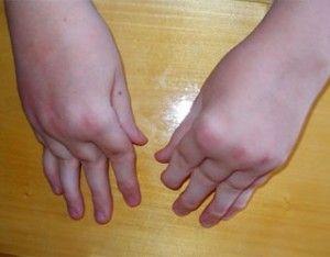 Как артрит проявляется у детей