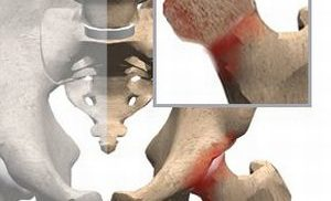 Воспалительный процесс в головке бедренной кости