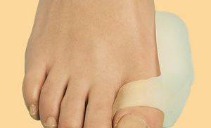 воспаление пальца