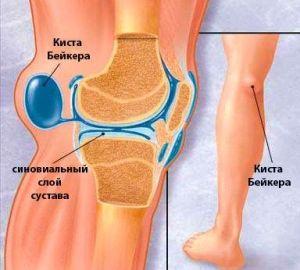 Уплотнение на внутренней стороне колена
