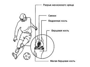 причины травм колена