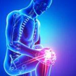 лечить воспаление коленного сустава