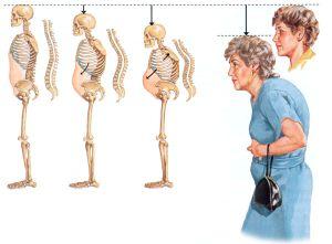 Как развивается остеопороз
