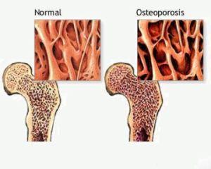 Здоровые и пораженные заболеванием суставы