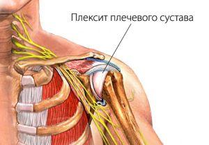 плексит плеча
