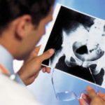рентгеновский снимок подвывиха