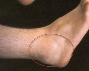 опухший голеностопный сустав