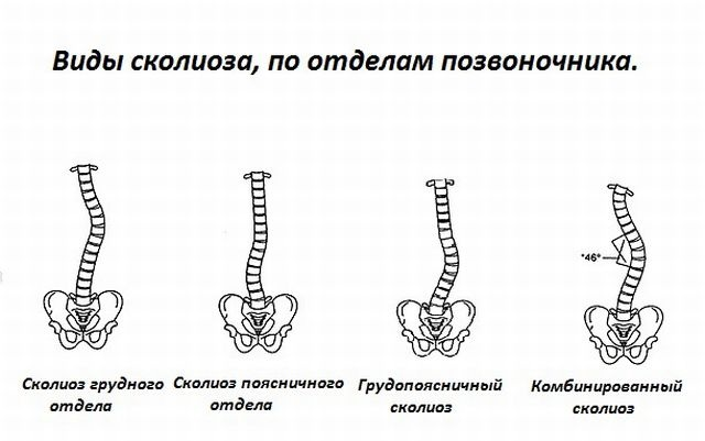 Классификация видов сколиоза