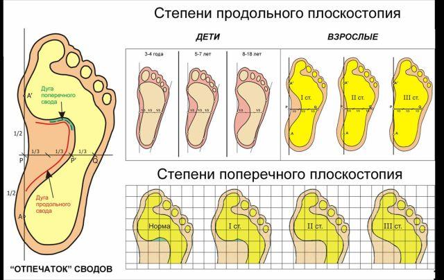 На фото схема проверки стопы