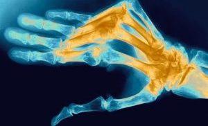 воспаление суставов руки