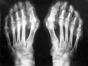 рентген стопы с воспалительным процессом
