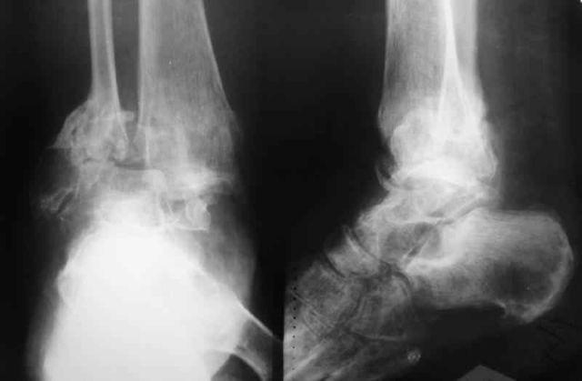 рентген стопы