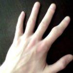 поврежденный палец