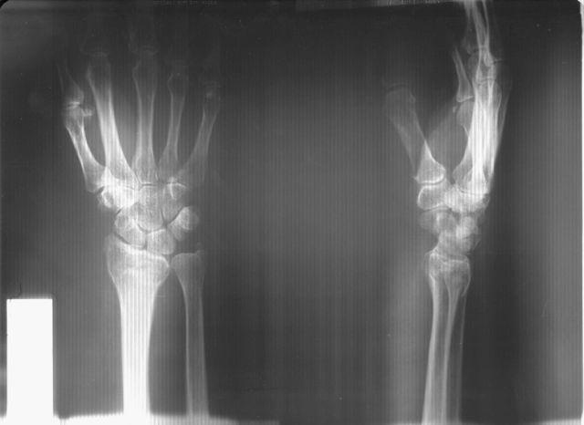 рентген лучевой кости