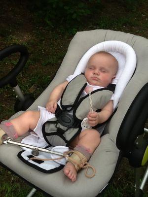 малыш с дисплазией