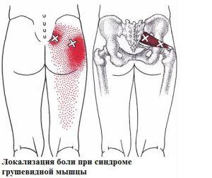 боль седалищного нерва