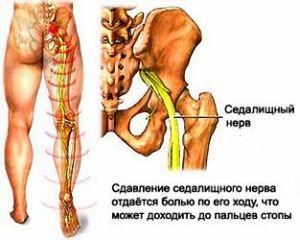 боль в грушевидной мышце