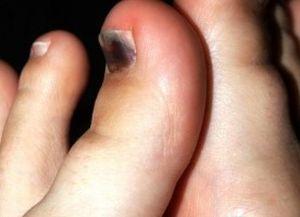 Отек большого пальца ноги