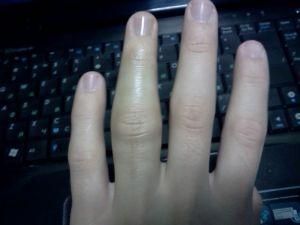 опухший палец