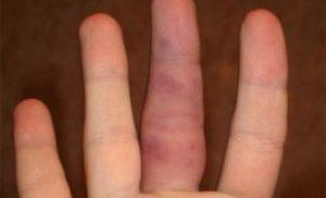 Ушиб пальца