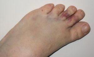 опухоль на пальцах