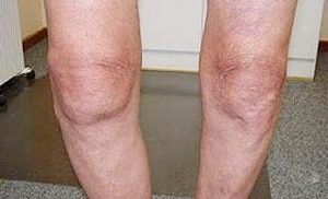 контрактура колена