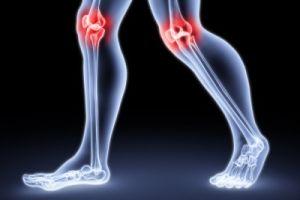 нагруженые колени