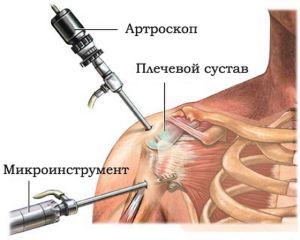 атроскопия на плече