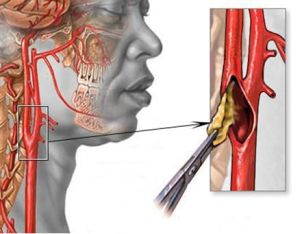 синдром позвоночных артерий