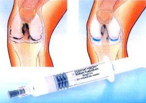 протез синовиальной жидкости