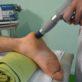 процедура при пяточной шпоре