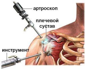 артроскопия на плечевом суставе