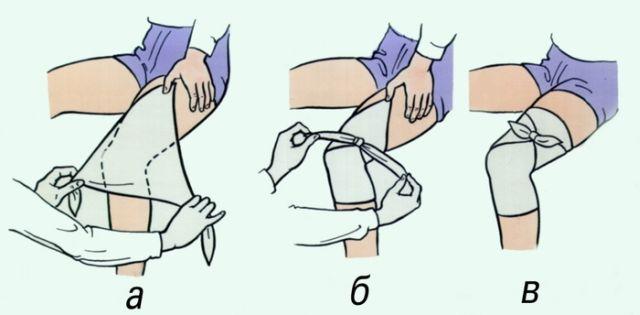 Как правильно накладывать повязки Лечебные процедуры