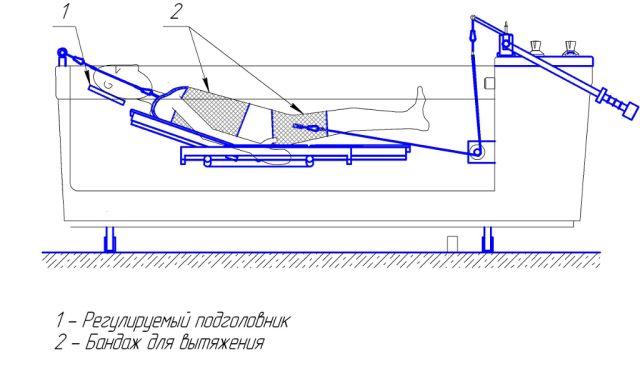 Процедура подводного вытяжения позвоночника