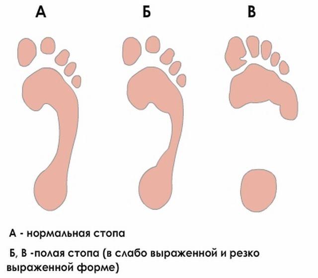 прогресс полой стопы